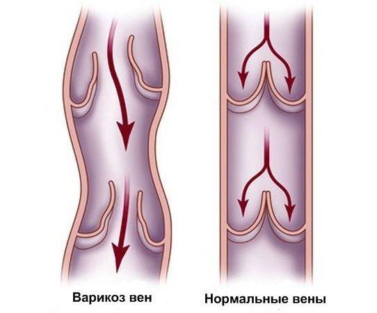 Варикозное расширение вен: причины, симптомы и лечение заболевания