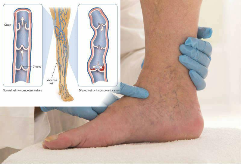 как яживу с варикозом на ногах