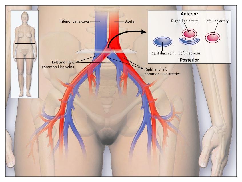 варикоз у женщин в паху