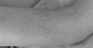 ретикулярный варикоз нижних конечностей фото