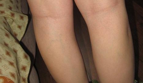 Венозная сетка на ногах у беременных 41