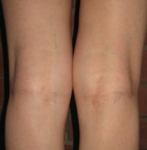 вздулась вена на ноге фото