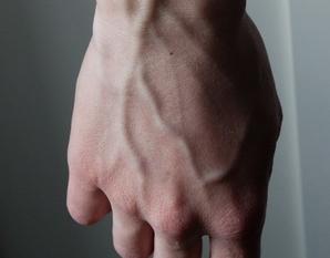 варикоз на руках фото