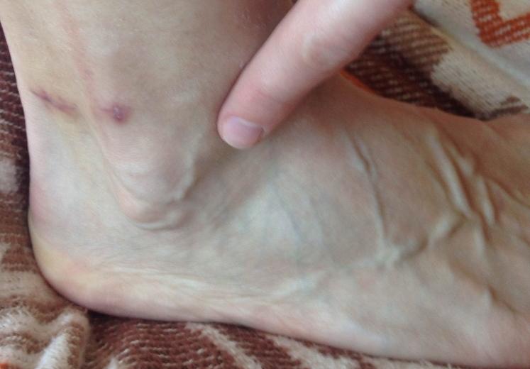 Боль в ноге при варикозе что делать