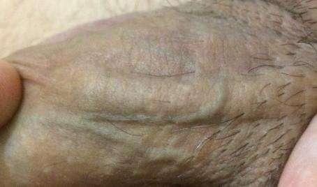 Варикоз на половом члене лечение