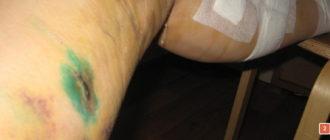 последствия удаления вен при варикозе фото