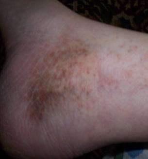 темные пятна на ноге фото
