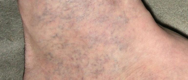 синие пятна на ногах фото