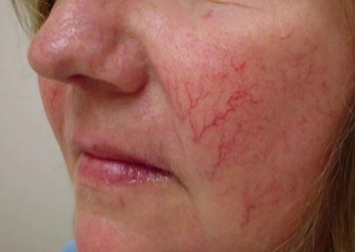капиллярная сетка на лице фото