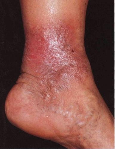 дерматит на голени фото