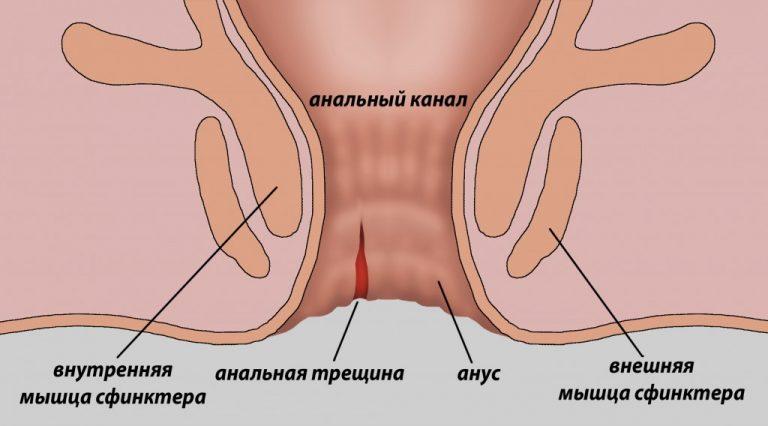 Анальный секс видео изнутри 73