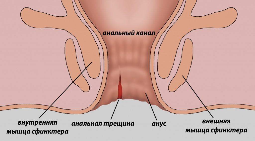Боль в заднем проходе