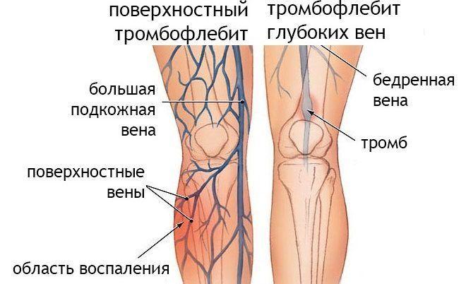особенности тромбофлебита