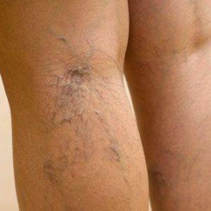 ретикулярный варикоз на ноге