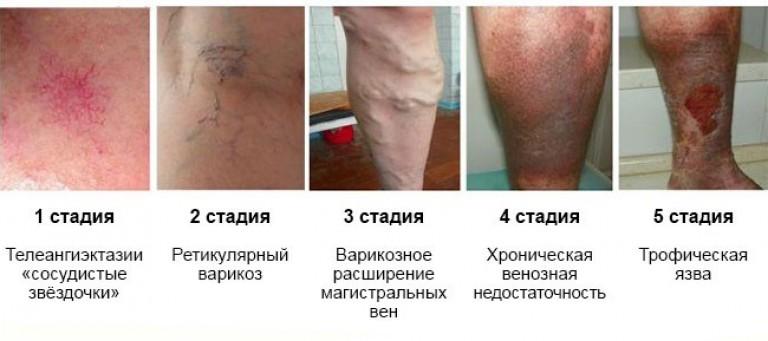 стадии варикоза