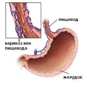 варикоз вен пищевода