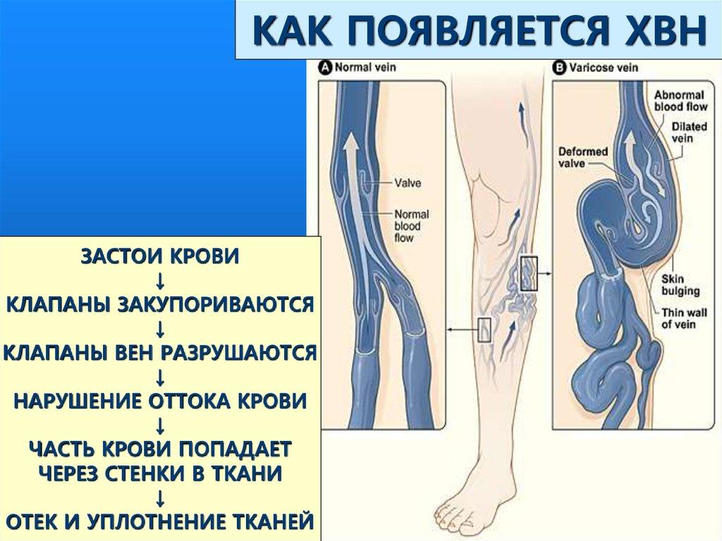 Из за чего варикоз на ногах