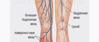 тромбофлебит поверхностных вен нижних конечностей