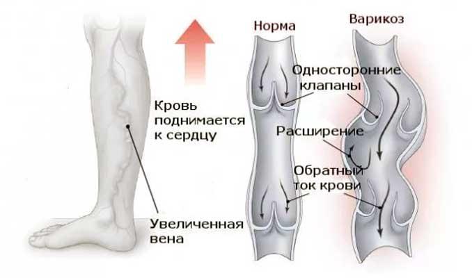 измененные варикозом сосуды