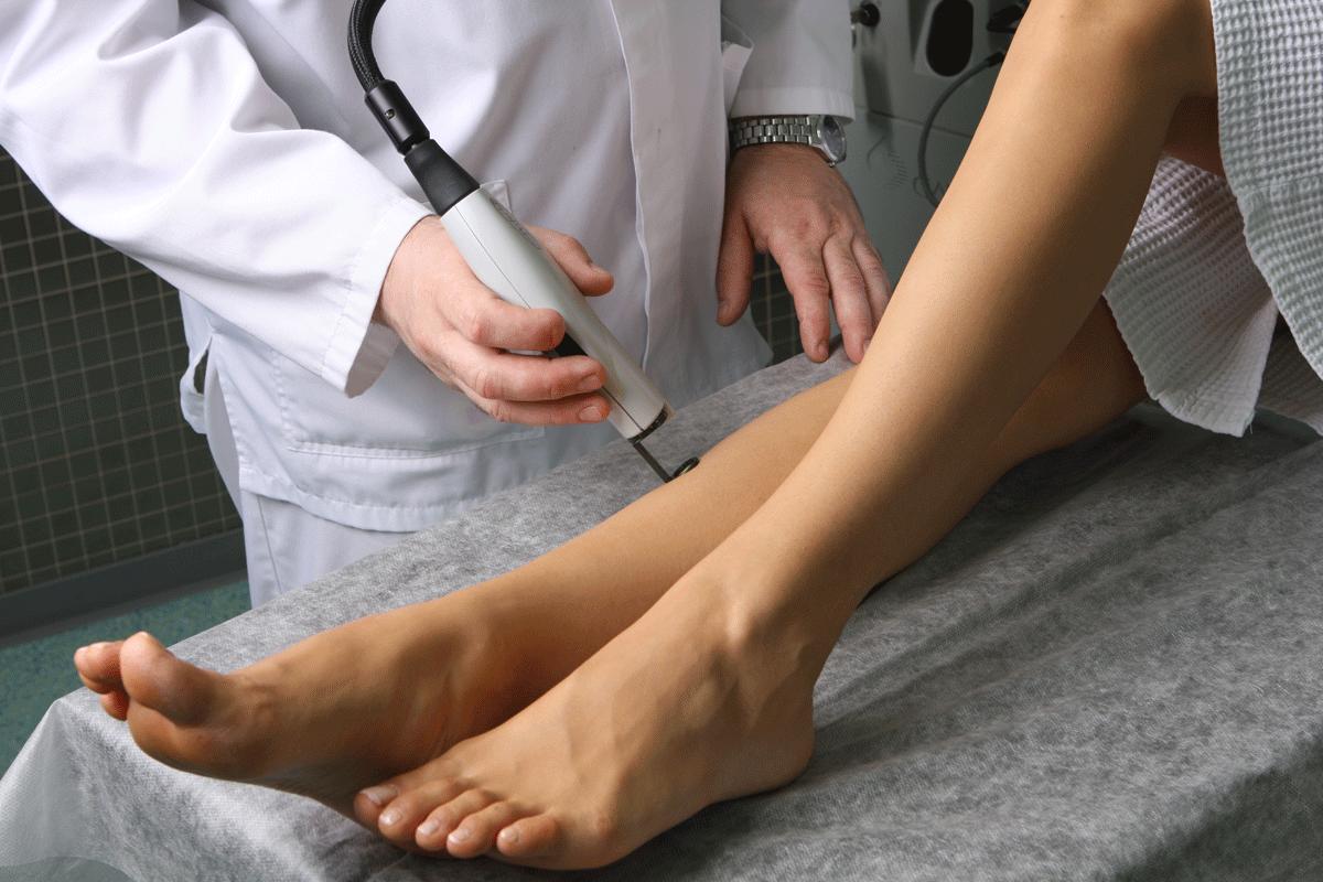 лазерной склеротерапии варикоза