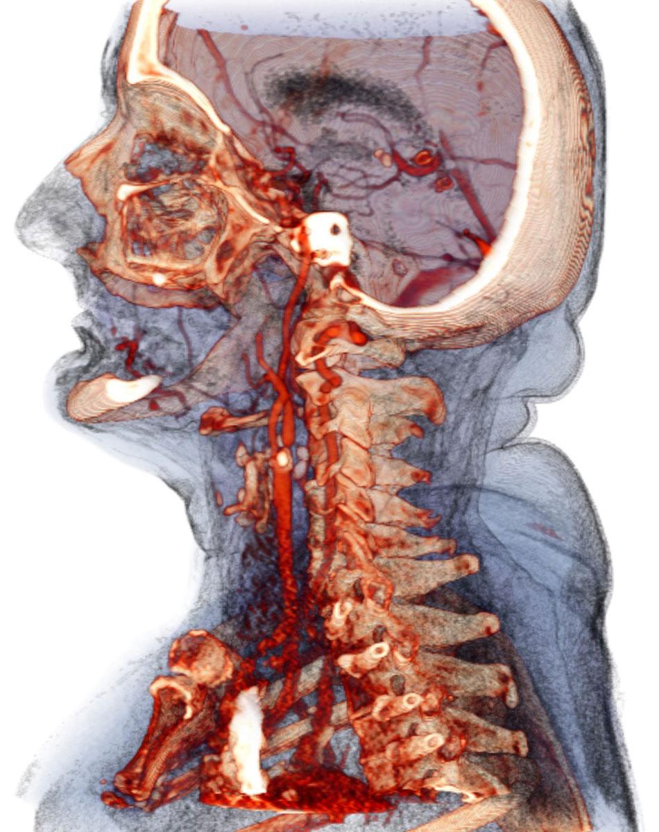 Атеросклероз сосудов шейного отдела