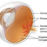 Диабетическая ретинопатия.