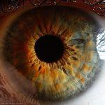 Гипертоническая ретинопатия.