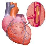 Ишемия сердечной мышцы