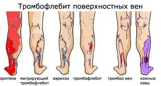 Варикоз и тромбофлебит в чем разница