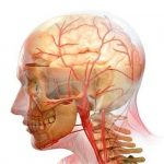 атеросклероза сосудов головы и шеи