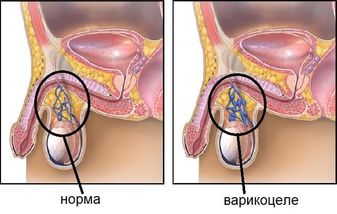 беременность после операции варикоцеле