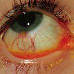 гиперемию (покраснение) глазного яблока