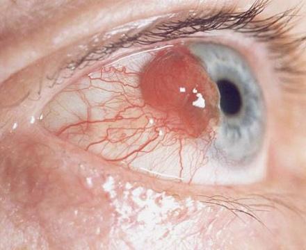 глазные опухоли.