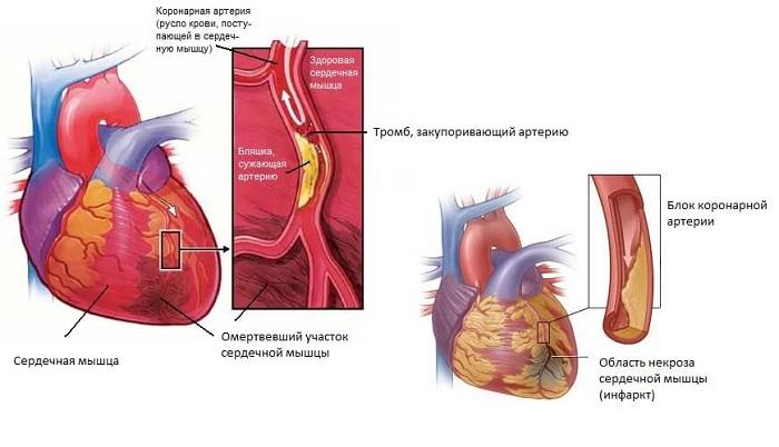 инфаркт миокарда и