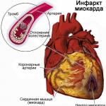 инфаркт миокарда....