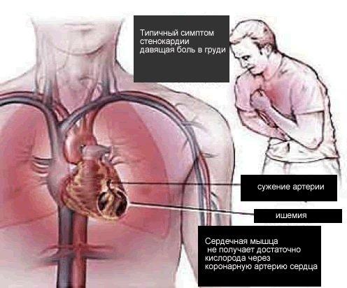 проявления стенокардии