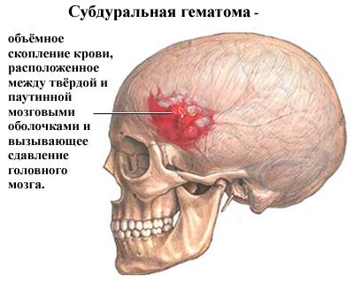 травматические поражения черепа