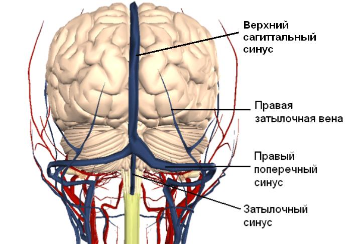тромбоз венозного синуса