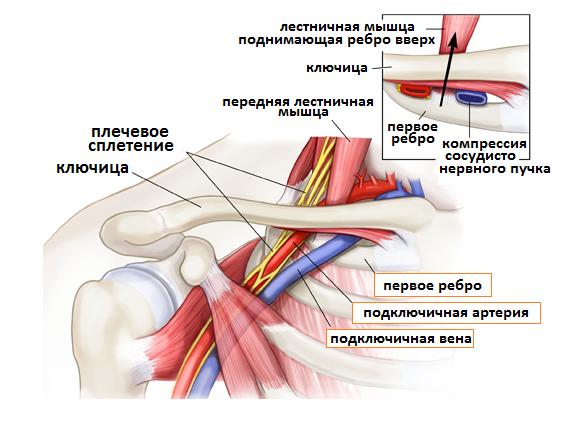 тромбозом внутренней яремной вены