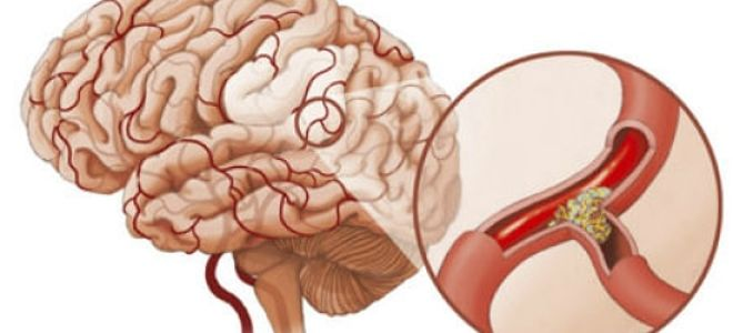 вазоспазм сосудов головного мозга