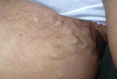 варикоз в паху у женщин фото