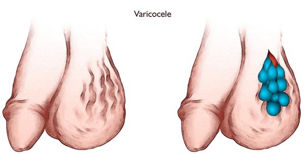 варикоз яичек у мужчин