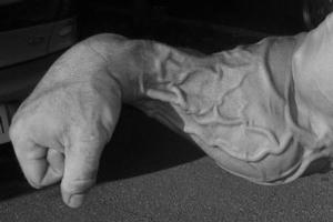 Почему появляются вздутые вены на руках у мужчин?