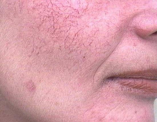 купероз на лице фото