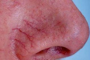 купероз на носу фото