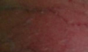 Капилляры на яичках с красными точками
