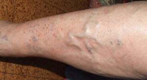 варикоз на ногах фото