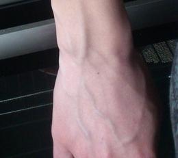 варикозное расширение вен на руках фото