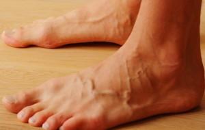 вздутие вен на ногах у мужчин фото