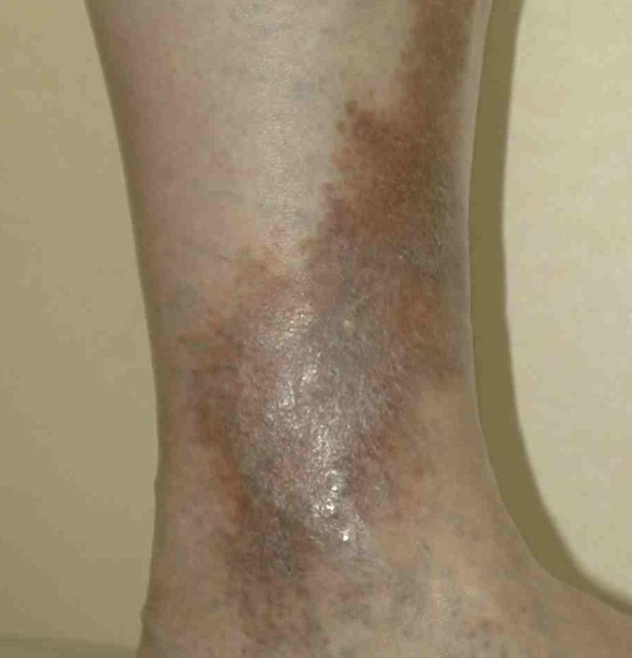 Что означают красные темные пятна на ногах при варикозе и как это лечить